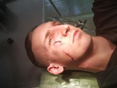 чоловік отримав глибокі різані рани