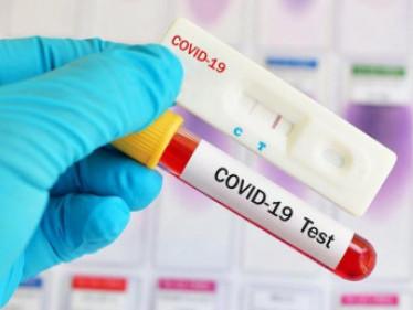 На Рівненщині зафіксували 54 нових випадки коронавірусу
