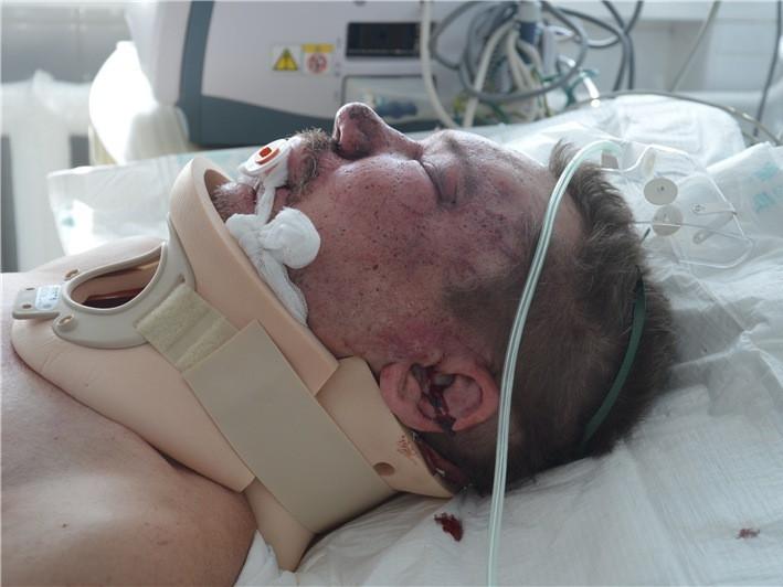 Помер чоловік, якого жорстоко побили у Нововолинську