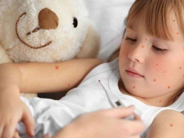 На Ківерцівщині захворіло 23 людини на кір